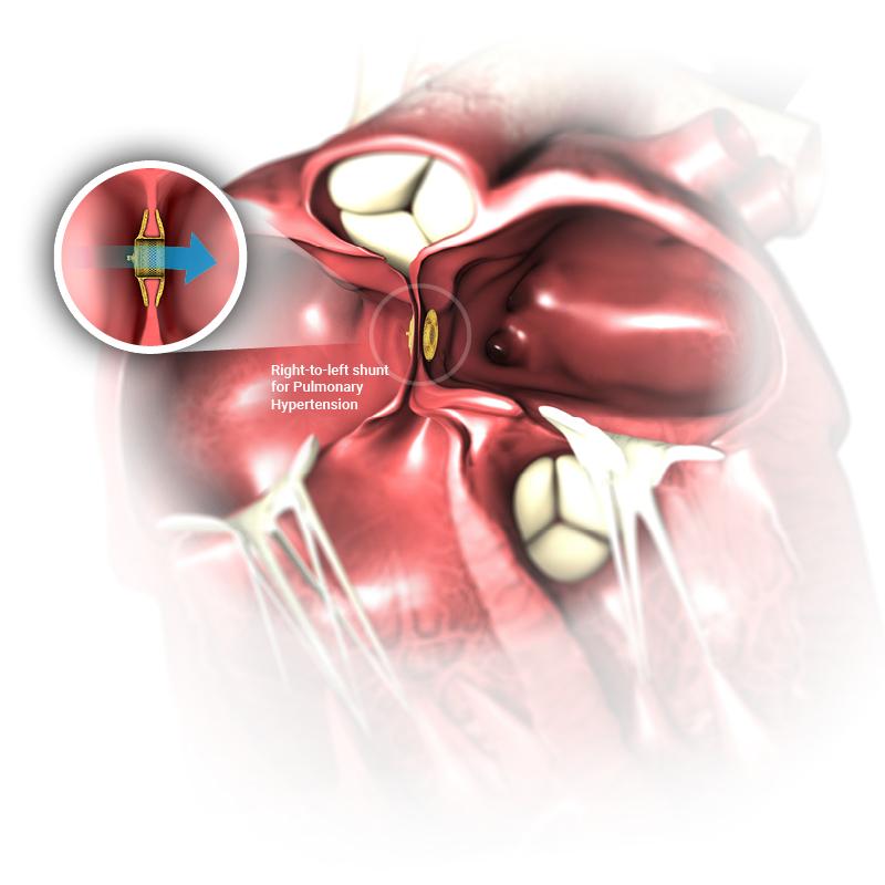 AFR Heart